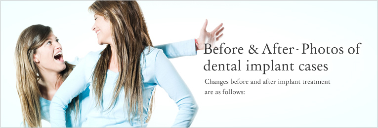 Before&After - Photos of  dental implant cases Changes before and after implant treatment are as follows: